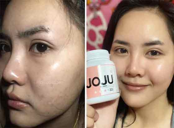 real testimoni minum joju collagen 4